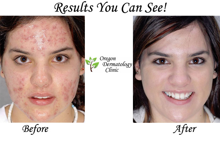 Acne-Treatment-Oregon-Dermatology-Clinic